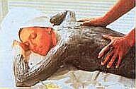 psoriasis behandeling dode zee