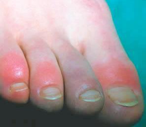 rode jeukende vlekken op benen